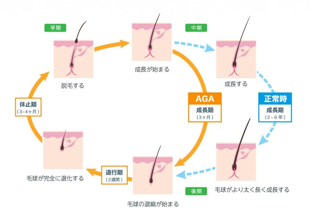 毛周期(ヘアサイクル)の乱れ